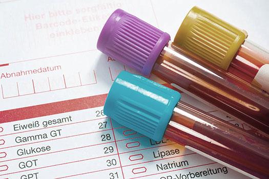 Blutproben-Sammelaktion
